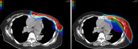 Proton Cancer by Proton Beam Therapy Cancer Hospital New Images Beam