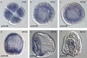 File:Sea Urchin-activinB.png - Embryology