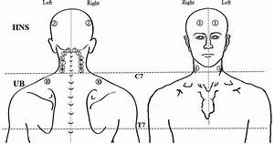 Location Of Trigger Points In The Head  Neck  Shoulder And