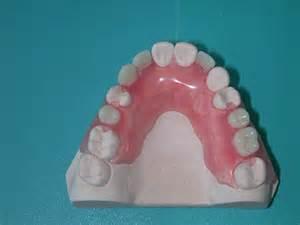 Valplast Partial Dentures