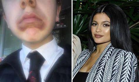 Blundering boy bruises face after trying Kim Kardashian ...