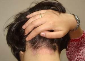 Себорея псориаз волосистой части головы лечение
