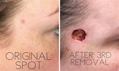 cancer peau photo une tache sur visage se transforme en cancer de la peau photos