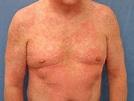 Drug hypersensitivity syndrome   DermNet NZ