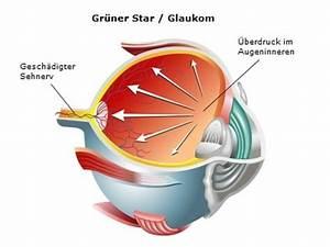 glaukom bei kindern ursachen