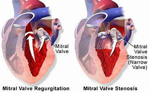 Mitral Valve Replacement (Discharge Care) - Care Guide