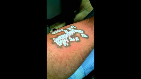 laser tattoo removal worst pain  youtube