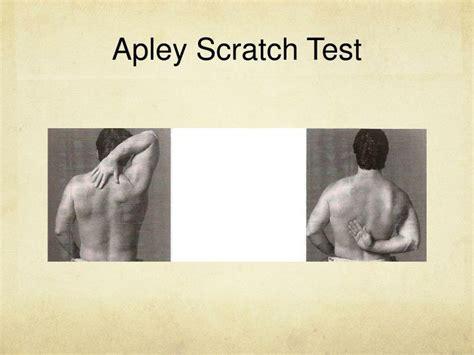 Shoulder Orthopedic Tests Powerpoint Presentation