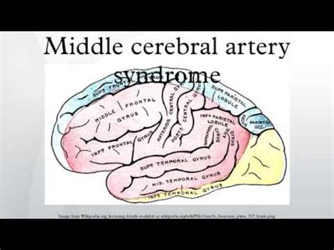 Middle Cerebral Artery Syndrome  Youtube. December 12 Signs Of Stroke. Glass Signs Of Stroke. Hoop Clipart Signs. Sternum Signs. Big Signs Of Stroke. Lock Out Tag Out Signs Of Stroke. Conversational Signs Of Stroke. Mask Signs Of Stroke