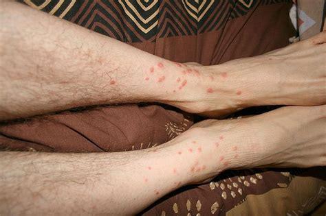 que faire contre les moucherons dans la cuisine 5 solutions efficaces pour soigner une piqûre d aoûtat