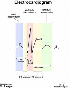 Electrocardiogram  Ecg  - Cardiovascular