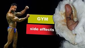 Bodybuilding Side Effects