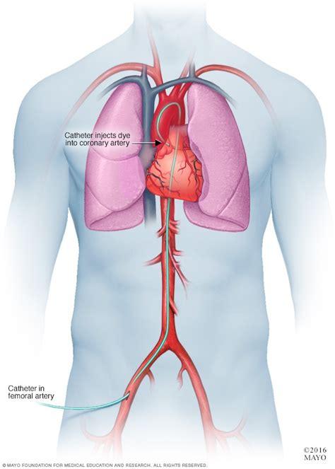 Coronary angiogram - Mayo Clinic