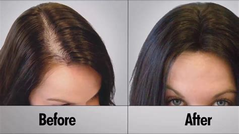 How To Get Rid Of Hair Fall And Get Long And Thick Hair