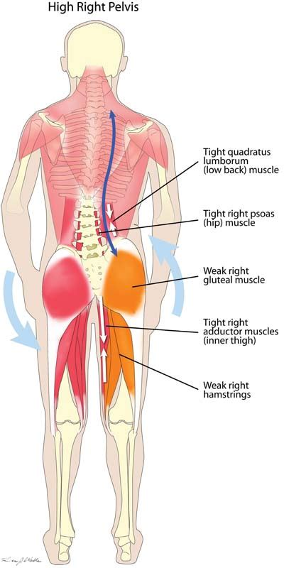 The iliopsoas muscle, which extends from the lower back to. Low back pain treatments | Manchester Osteopathy
