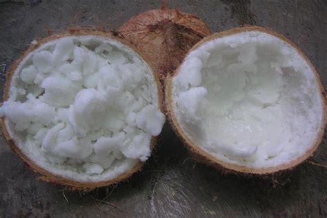 inilah 6 manfaat yang layak anda ketahui dari kelapa
