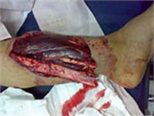 Gangrene of the right foot in person with diabetes in Iran.