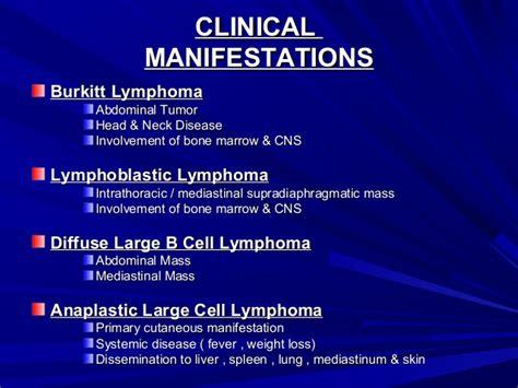 cervical lymphoma symptoms