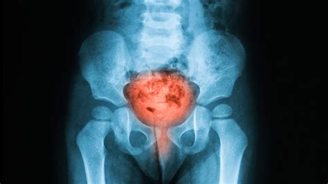 bladder cancer aopa