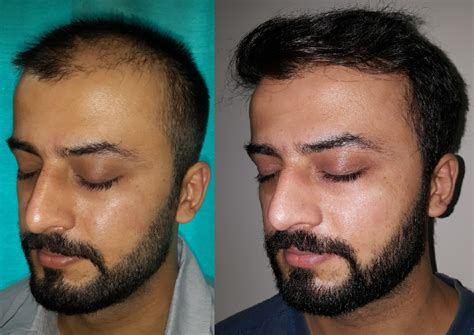 Fue Hair Transplant Surgery At Boston Aesthetics Lahore. Absolute Investment Advisors. South Bend Family Dentistry Kia Eco Dynamics. Online Speech Language Pathology Graduate Programs. Falls Village Retirement Community. Verify Security Guard License. Protective Agency Insurance Audit By The Irs. Acrylic Literature Racks What Is Ehr Software. How Do You Treat Rheumatoid Arthritis