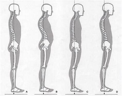 Nek (anatomie) - wikipedia