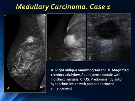 Ecr 2015 / C-0889 / Well-circumscribed Breast Carcinoma