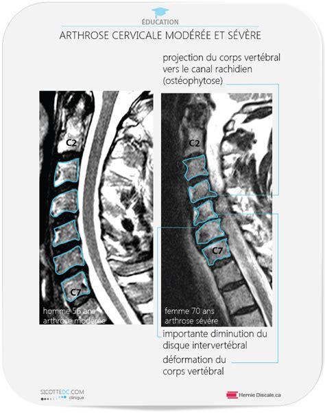 pincement discal l5 s1 arret travail arthrose l5 s1 carabiens le forum
