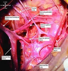 Right Internal Iliac Artery Dissection Over The Internal