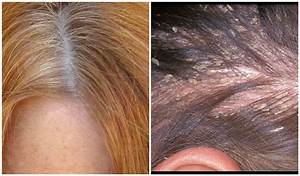 The Difference Between Dandruff And Dry Scalp
