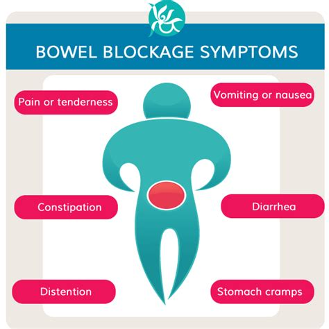 Symptoms Of Blocked Bowel. Furniture Transport Services Www Doges Com. Cleaning Service Houston Texas. Mts Cell Viability Assay Best Online Training. Microsoft Exchange Fax Server. Business Writing Courses Master Graphic Design. Home Theater Installation Raleigh Nc. Best Nursing School In Florida. Business Systems Analyst Skills