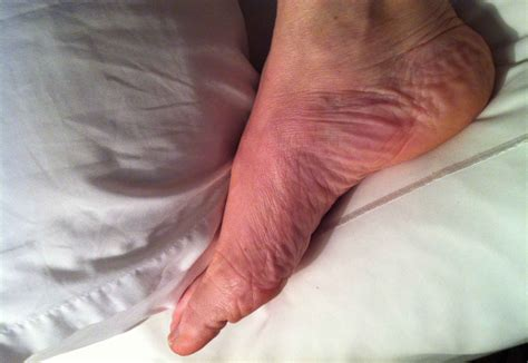 My Itchy Foot  Jilllawton. Desktop Email Encryption Expert Witness Nurse. Auto Insurance Panama City Fl. Game Development Program Arc Flash Assessment. How To Purchase Car Insurance. Northeastern Wisconsin Technical College. Calculating Annuity Payments. Cloud Storage For Home Users Sep Ira Limit. Act Hollywood Theatre Of Arts