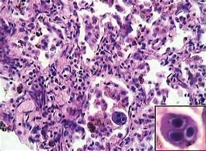 Viral ventilator-associated pneumonia: Uncovering tip of ...