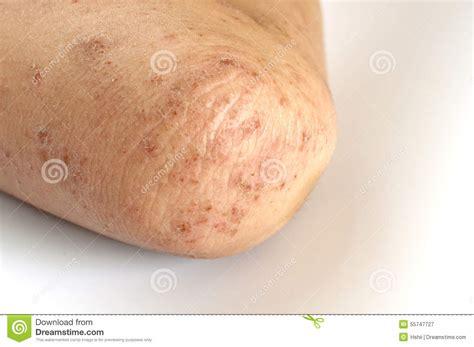 Eczema Stock Photo Image 55747727