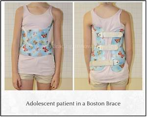 Comparing Scoliosis Braces - Scoliosis Bracing Innovations ...