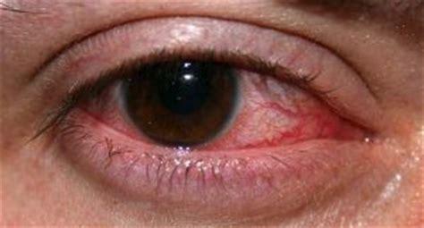 Herpes Labiale Interno Herpes Occhio Cause Sintomi E Rimedi Per L Herpes Oculare