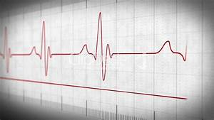 Ekg Electrocardiogram Pulse Real  Royalty