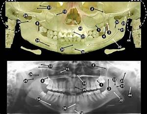 17 Best Images About Radiographic Anatomy On Pinterest