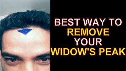 Peak Removal Hairline Widow Forehead Fix