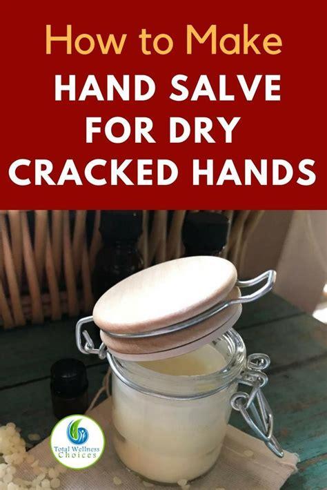 diy hand salve recipe  images hand salve cracked