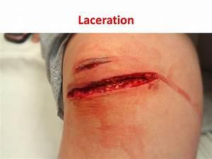 LACERATION. - ppt video online download