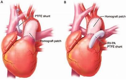 Norwood Ascending Operation Aorta Arch Homograft Patch
