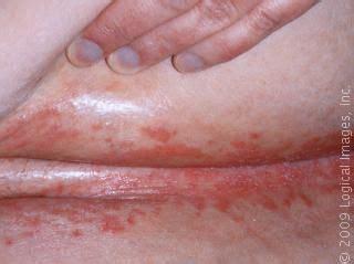 candidiasis yeast infection  skin fold  abdomen