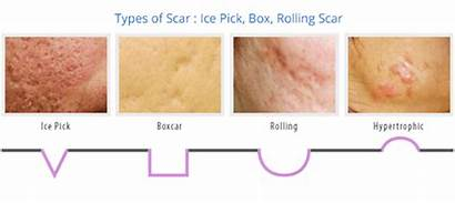 Acne Scars Types Scar Marks Treatment Different