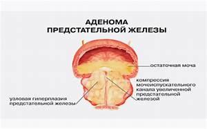Массаж как средство профилактики простатита