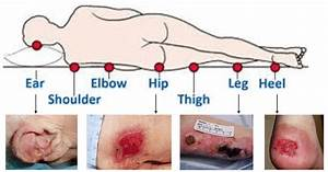 Body Parts Affected By Pressure Injuries  3
