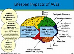 Image result for art of the brain of an ace's child