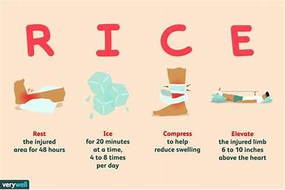 Rice Principle Rest Compression Ice Elevation Bones