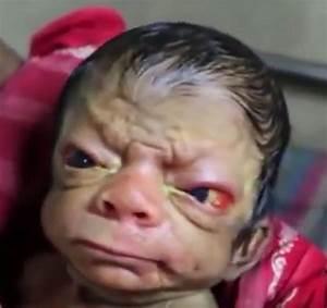 Newborn baby resembles an old man | Freak Lore