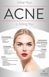 What Your Acne Is Telling You