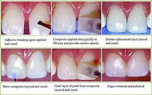 Dental Veneers: A Cosmetic Technique to Improve One's ...